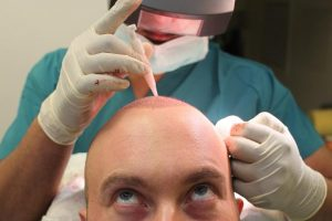 Hair transplant in Budapest